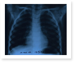 Tuberculosis Research Papers: Free Hints and Facts for You